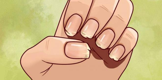 Если у вас слоятся и ломаются ногти, то организм умоляет о помощи