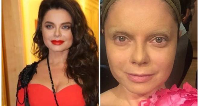 А есть ли она, красота? 5 звезд показали лица без макияжа