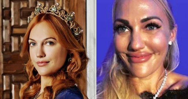 Превратились в кукол: звезды турецкого кино до и после пластики