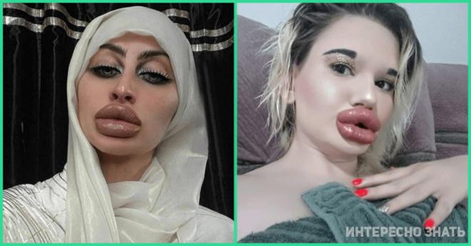 А они не лопнут? 10 девушек, которые сильно перестарались с увеличением губ