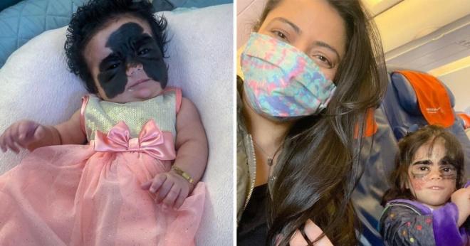 Девочку с «маской бэтмена» вынудили покинуть Россию до конца лечения